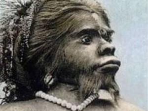 Mujer mono. Julia Pastrana fue mostrada en varios países.