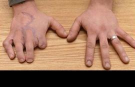 Jonas Barber tiene dos dedos del pie en su mano accidentada