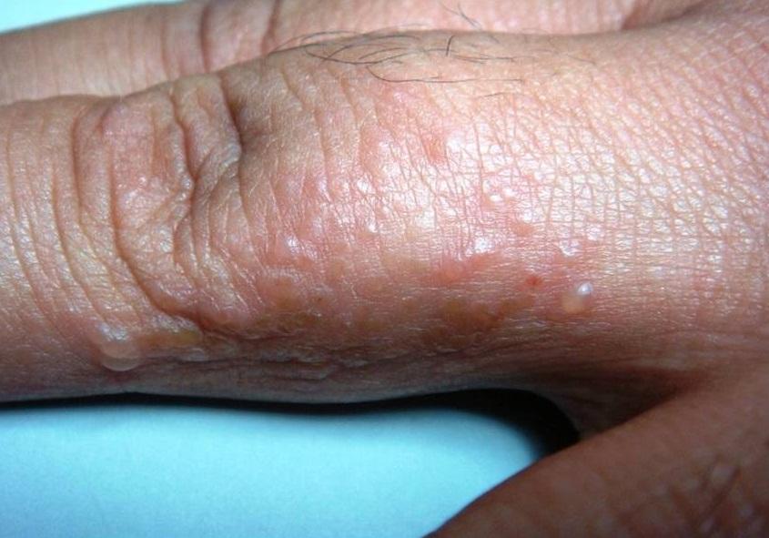 El tratamiento de la psoriasis por los anticuerpos