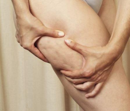 Cinco-remedios-caseros-para-acabar-con-la-celulitis