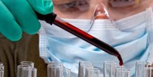 Descubren un método para conocer con precisión la duración de la vida de una persona a partir de un análisis de sangre  Texto completo en: http://actualidad.rt.com/ciencias/view/84254-fecha-caducidad-gota-sangre